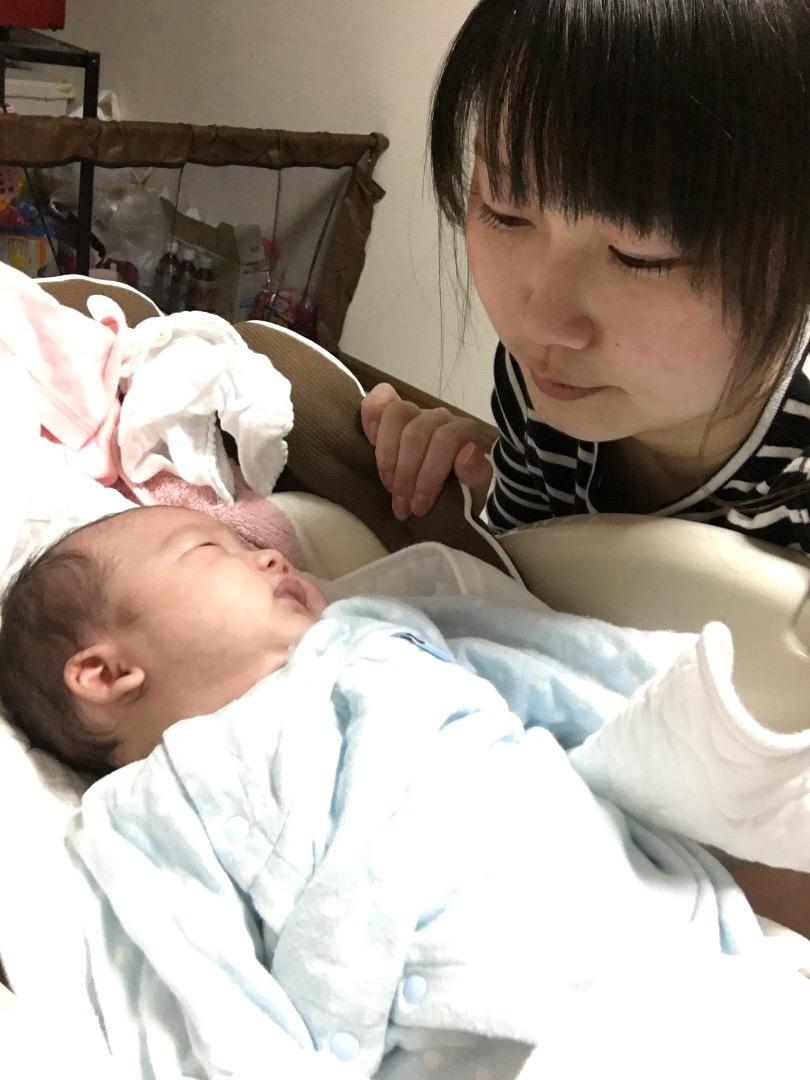 赤ちゃん 臍 ヘルニア